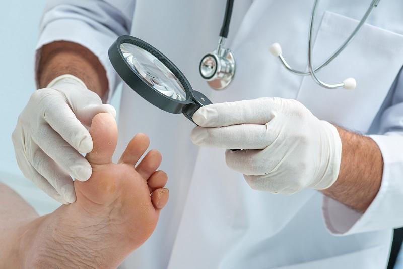 tinia-pedis-or-athletes-foot