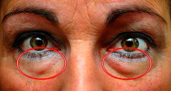 learn-the-best-natural-treatments-to-remove-dark-circles-and-bags-under-the-eyes-6266987